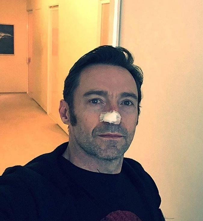 hugh jackman cancer piel selfie instagram