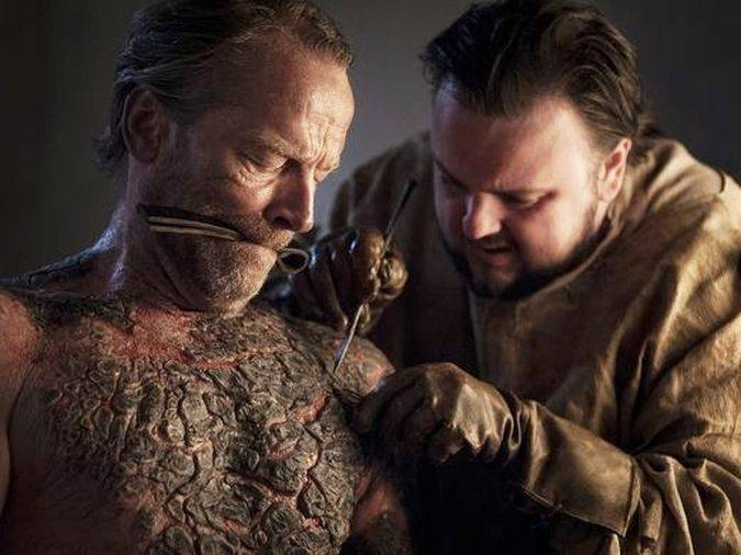 game of thrones jorah mormont psoriagris sam