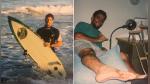 Hombre encuentra un diente de tiburón en su pie 25 años después de ser atacado - Noticias de sistema inmunológico