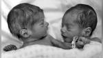 El asombroso momento en el que unos gemelos recién nacidos se ven por primera vez fuera del vientre - Noticias de gopro