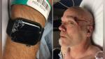 Sufrió una terrible caída mientras practicaba ciclismo de montaña y su smartwatch llamó a los paramédicos - Noticias de caída de redes sociales